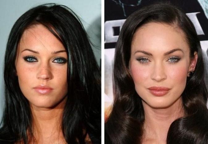 Фото Меган Фокс до и после пластики