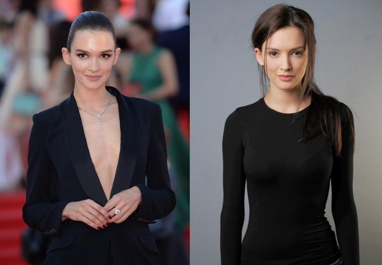 Паулина Андреева: фото до и после пластики