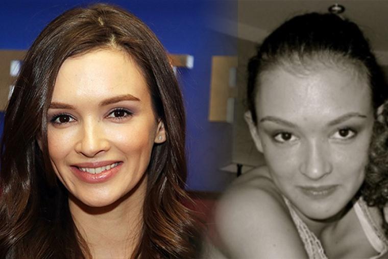 Паулина Андреева: фото до пластики и после